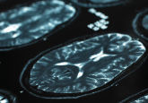3D-printed skull implants allows real-time monitoring of brain activity