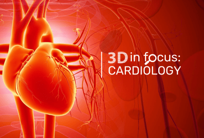 3D printing in cardiology