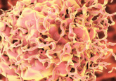 Colorectal cancer organoids bioprinted to inform tumor growth research